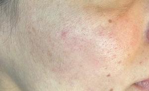 Skin Microneedling